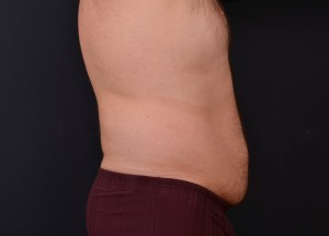 , Vanquish Body Contouring Before & After