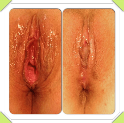 , Labiaplasty & Vaginal rejuvenation Before & After