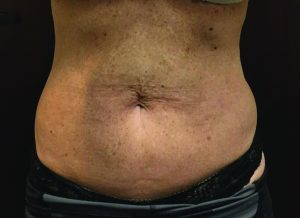 , CoolSculpting Body Contouring <br> Before & After Gallery