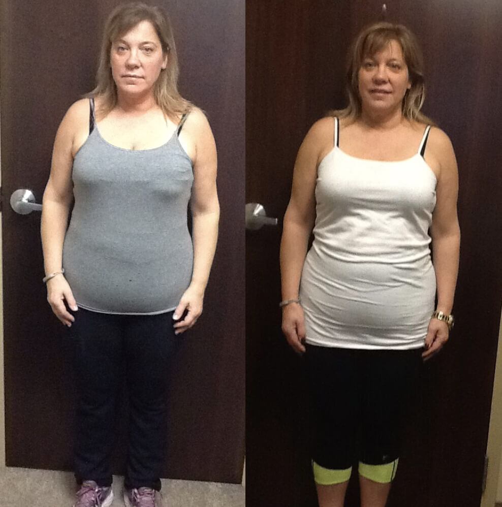 , HCG Weight Loss Program Before & After